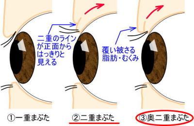 一重瞼と二重瞼と奥二重の違い